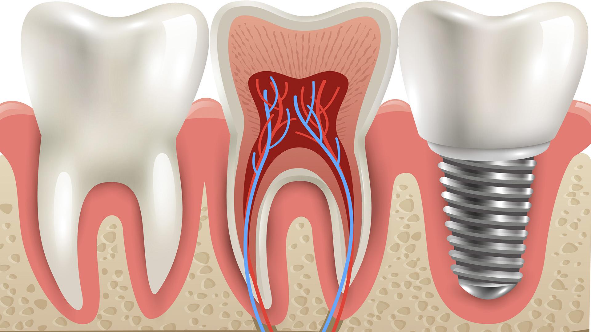 implantologia saludverita