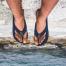 dolor de pies por uso de chancla sy sandalias