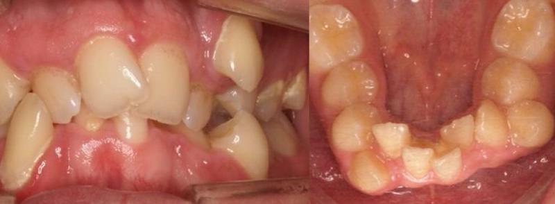 ortodoncia apiñamiento dental